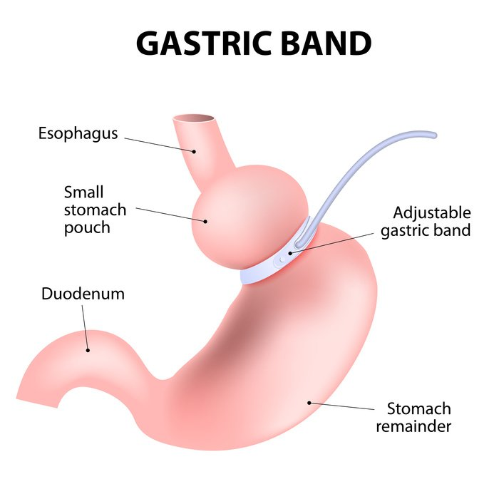 lap band procedure The lap-band system is the brand name of the fda-approved, adjustable gastric band used in the lap-band procedure a lap-band is a silicone belt or collar that goes around the upper part of the stomach.